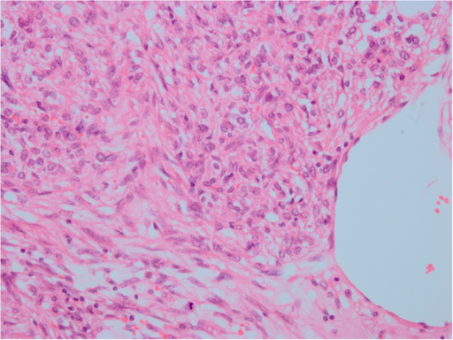 HE staining. The ranges of vision are filled with abundant epithelioid cells, with red cytoplasm and large nuclei; nucleoli were visible, with a certain degree of pleomorphism and mitotic figures. Original magnification ×400.