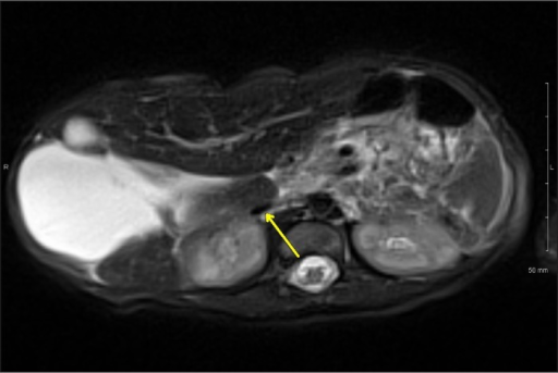 Postnatal MRI axial T2 image demonstrating a compressed IVC (arrow) and liver parenchyma anterior, posterior, and medial to the cyst.