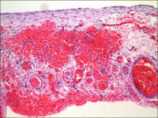 H&E stain (magnification 10x) showing the lining of the cyst composed of flattened squamoid epithelium, and the wall of the cyst composed of fibrovascular tissue.