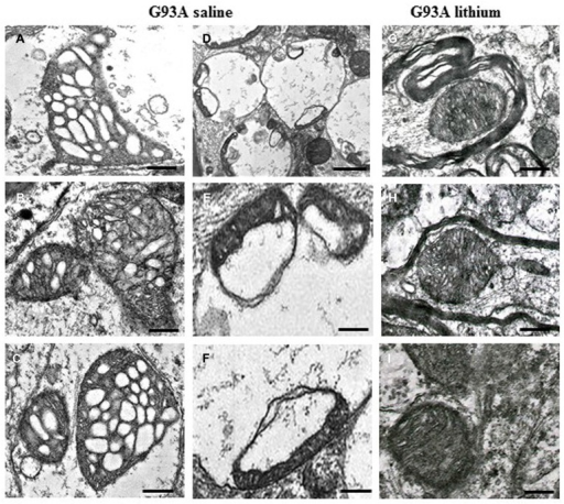 Paradigm of severe mitochondrial alterations in ALS motor neurons. The first (A–C) and the second column (D–F) show at low and high magnification, respectively, the severe damage produced to mitochondria by the SOD1 G93A ALS-inducing mutation. On the right column (G–I), the beneficial effects of autophagy, induced by lithium, are evident. Scale bars: A–C = 0.12 μm; D = 0.55 μm; E = 0.15 μm; F = 0.13 μm; G–I = 0.12 μm; from Fornai et al. (2008a), Supporting Information, SI Figure 21; Copyright (2008) National Academy of Sciences, USA.