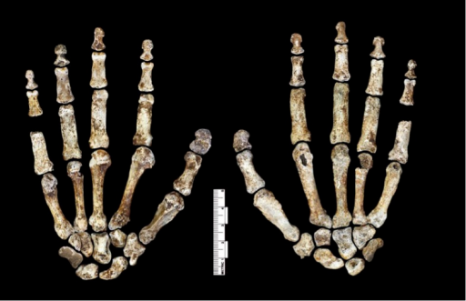 Hand 1.Palmar view on left; dorsal view on right. This hand was discovered in articulation and all bones are represented except for the pisiform. The proportions of digits are humanlike and visually apparent, as are the expanded distal apical tufts on all digits, the robust pollical ray, and the unique first metacarpal morphology.DOI:http://dx.doi.org/10.7554/eLife.09560.008