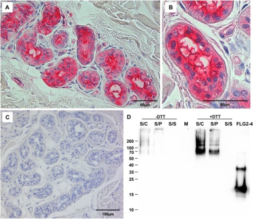 FLG2 is detected in eccrine sweat glands and sweat.A-C: | Open-i