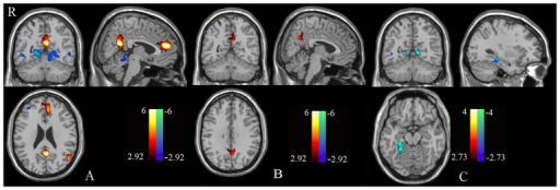 Brain regions showing other-semantic activation in patients with schizophrenia and the control group.One-sample tests produced the spatial patterns of brain regions showing other-semantic activation for both healthy controls (A) and patients with schizophrenia (B). Warm colors represent positive while cool colors indicate negative activation. A two-sample t-test assessed the differences between the two groups (controls versus patients, C). The above results were obtained with threshold p< 0.01, AlphaSim correction p< 0.01.