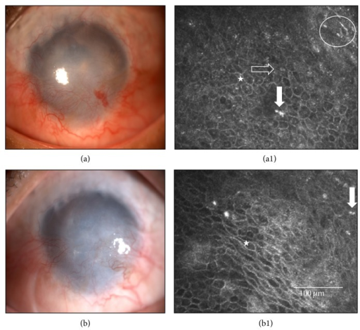Case 17 (Table 1) before and after cultivated limbal epithelial transplantation (CLET). This 52-year-old male suffered a chemical injury in his right eye 5 years earlier. He developed total limbal stem cell deficiency and showed at the initial visit an opaque and vascularized cornea (a) with a conjunctival-like phenotype at in vivo confocal microscopy (IVCM) in central cornea (star), with goblet cells (horizontal arrow), inflammatory cells (vertical arrow), and Langerhans cell (circle), (a1). He received an allogeneic cultivated limbal epithelial transplantation (CLET). (b) After 12 months and although his symptoms and ciliary hyperemia had improved, this case was considered a CLET failure as his epithelial phenotype in central cornea (b1) was still conjunctival-like (star), with inflammatory cells (vertical arrow), evaluated by IVCM.