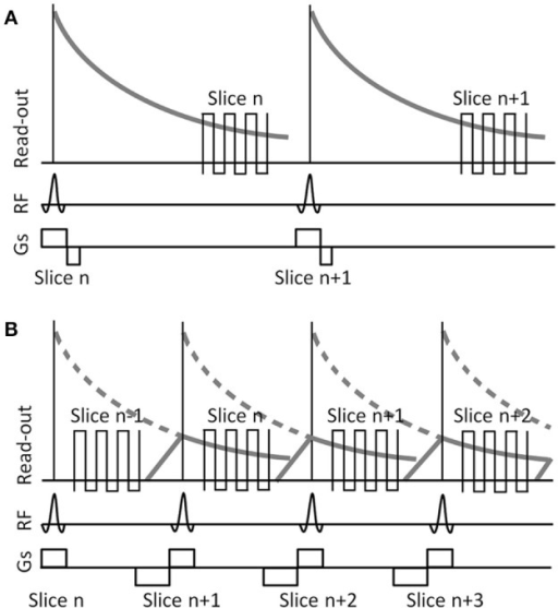 Schematic illustrating slice excitation and read-out for a typical fMRI EPI sequence (A) and a sequence incorporating a shifted-echo (B). RF, radio frequency. Gs, slice selection gradient. In the typical fMRI EPI sequence data are acquired at a long TE, forcing a long repetition time TR between consecutive RF pulses. In the shifted-echo fMRI EPI sequence, the delay time between the end of the RF excitation and the start of the read-out is used to acquire another slice, effectively reducing the TR to half the time, while maintaining the same long TE for each slice. Gradient spoiling and rephrasing is used to control the signal strength in each slice.