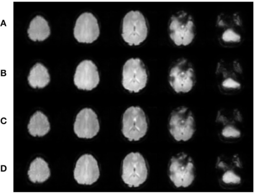 Realigned images for each EPI sequence for one participant. (A) SHORT, TR = 700 ms; (B) AVG2, TReffective = 1400 ms; (C) AVG4, TReffective = 2800 ms; (D) REF, TR = 1440 ms. Slices were created using Mango (http://ric.uthscsa.edu/mango/; Jack L. Lancaster and Michael J. Martinez).