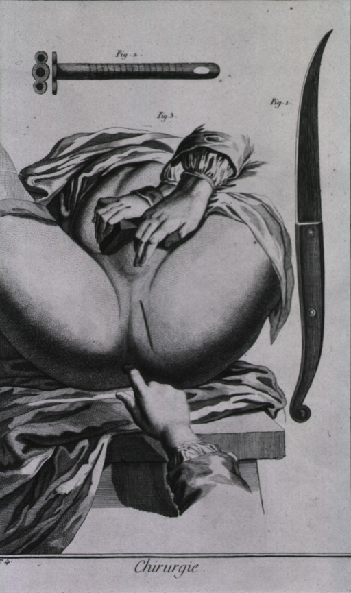 <p>Instruments shown are a bistoury for a cystotomy designed by M. Fourbet and a cannula.</p>
