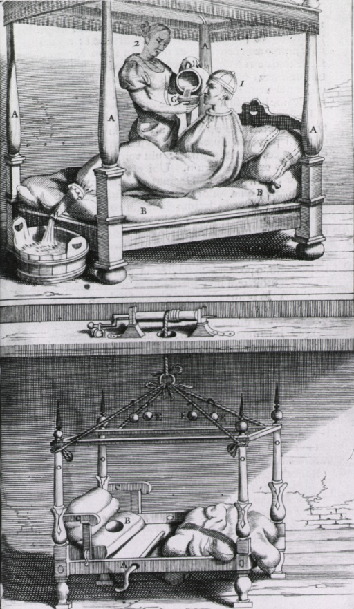 <p>Two part plate - top section showing a patient in bed in a fever bag with attendant; the other, an empty bed mounted on a pulley.</p>