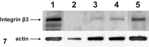 Representative Western immunoblots for integrin beta3 subunit and actin on whole cell extracts of MDA-MB-435 cell line (lane 1), normal breast tissue primary culture cells (lane 2) and primary culture cells of infiltrating breast carcinomas (grade II) (lanes 3, 4, 5). Equal amounts of protein (40 μg) were loaded from each sample and subjected to Western blot analysis. Integrin beta3 subunit was not detected in normal breast tissue cells, while differential expression of beta3 was observed in breast cancer cell samples. In the latter, a higher expression of actin was also observed in comparison with that of normal breast tissue cells.