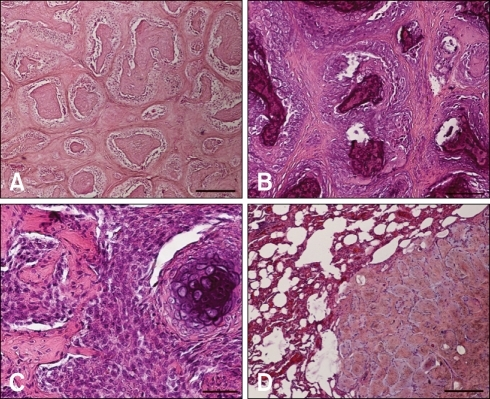 Primary (A, B, C) and secondary (D) multilobular tumour of bone. Note the dominant presence of multiple lobules containing osteoid tissue (C: left) or cartilage (C: right) and separated by fibrous septa, a feature typical of the multilobular tumour of bone. In marginal areas (C), the lobules were not as well formed and the tumour cells were in places arranged in sheets, features denoting a high-grade malignancy. (D) Metastatic focus in the lungs retaining the multilobular pattern, albeit forming lobules that were smaller and of more uniform size. H&E stain, (A) decalcified section. Scale bars = A: 260 µm, B: 104 µm, C: 52 µm, D: 260 µm.