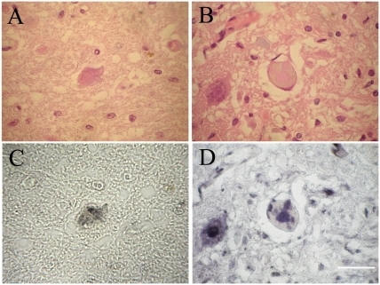 LBHIs immunopositive for 14-3-3β or 14-3-3γ in FALS patients.A and B are the same sections as C and D, respectively. The identical LBHIs observed on H&E (A, B) in the anterior horn cells are intensely immunostained with 14-3-3β (C) and 14-3-3γ (D). Bar indicates 50 µm.
