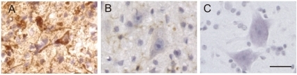 Neuronal inclusions immunopositive for C4F6 in mice.Strong immunoreactivity for C4F6 (A) was observed in the somatodendritic compartment with cytoplasmic inclusions in the mutant SOD1-Tg mice. Immunoreactivity for C4F6 was restricted to glial cells morphologically consistent with microglia in the wild-type SOD1-Tg mice (B) and absent in the non-Tg wild-type mice (C). Bar indicates 50 µm.