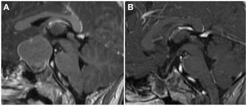 Surgical strategy grade 0/1 pre-op. (A) On the pre-operative MRI, the hypothalamus appeared to be more displaced than invaded by tumor (Type 1 pre-op). (B) This was confirmed during surgery and a complete removal preserving the hypothalamus could be achieved (Type 0 post-op).