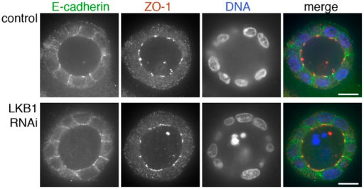 ZO-1 and E-cadherin localization are unaffected by LKB1 RNAi in MDCK cell cysts.Representative images of ZO-1 (red) and E-cadherin (green) immunofluorescence in control MDCK cell cysts and in cysts with LKB1 RNAi are shown. Sections were taken through the midpoint of the cyst to show the hollow lumen as well as the apical and lateral surfaces of cells at the widest part of the cyst structure. Bars, 10 µm.