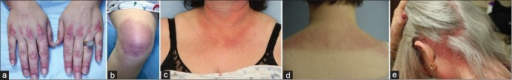 "(a) Gottron's papules: Violaceous, scaling papules on the skin overlying the joints and proximal nailfolds. (b) Gottron's sign: Violaceous patches overlying the knees. (c) ""V neck"" sign: Erythematous and hyperpigmented macules on the chest. (d) Shawl sign: Violaceous macules and patches on the upper back and shoulders. (e) Scalp disease in dermatomyositis: Deeply erythematous scaling plaques are seen diffusely on the posterior scalp"