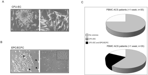 Characterization of the clonogenic potential of PBMC derived from ACS patients.PBMC samples obtained from ACS patients (n = 70) were seeded in collagen I coated wells for short-term primary colony assay in liquid culture medium. Cultures were monitored for 15 days for the presence of adherent colonies, scored on the basis of morphological features as: CFU-EC (A, left panel) or EPC/ECFC (B, left panel; arrowheads: hemopoietic mononucleated cells). In A, the right panel shows a monolayer of spindle-shaped endothelial-like monocytes. In B, the right panel shows a representative image of CFU-EC after in vitro expansion. Original magnification: 20X and 25X for the inset. In C, frequency of detection of CFU-EC and EPC/ECFC in PBMC of ACS patients, divided on the basis of the time of blood withdrawal after the hospital admission for the acute cardiovascular events.