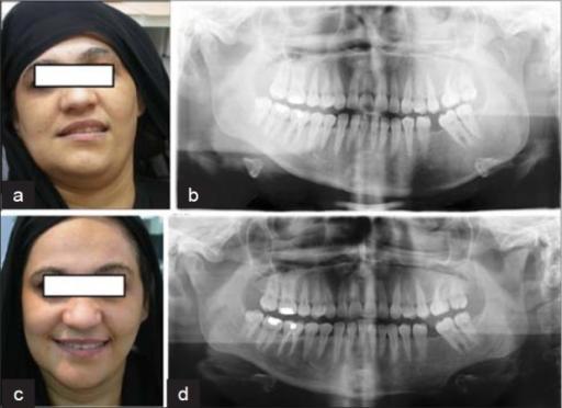 Cirugíasobre la asimetría mandibular