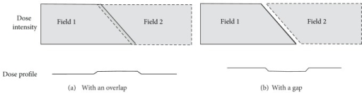 The dynamic field-edge matching technique generates a match zone by overlapping two fields along their border. Two complementary inclined fields smear the dose variations over a wide region. The field intensity profiles are shown with the fields (a) overlapping or (b) separated by a gap.