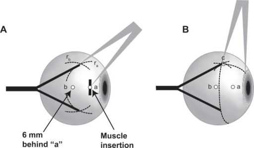 Y-split recession, side view.Notes: (A) The first orientation point (a) is determined by the natural midpoint of the muscle insertion. The second orientation point (b) is located 6 mm directly behind a. With a compass, the distance ra is marked with colored dye on the globe. The same procedure is repeated from b, with the distance rb marked with colored dye as well. The intersections of the two marked lines indicate the new insertion points for the split muscle halves. (B) The control distance (c) ensures the correct placement of the new insertion points.