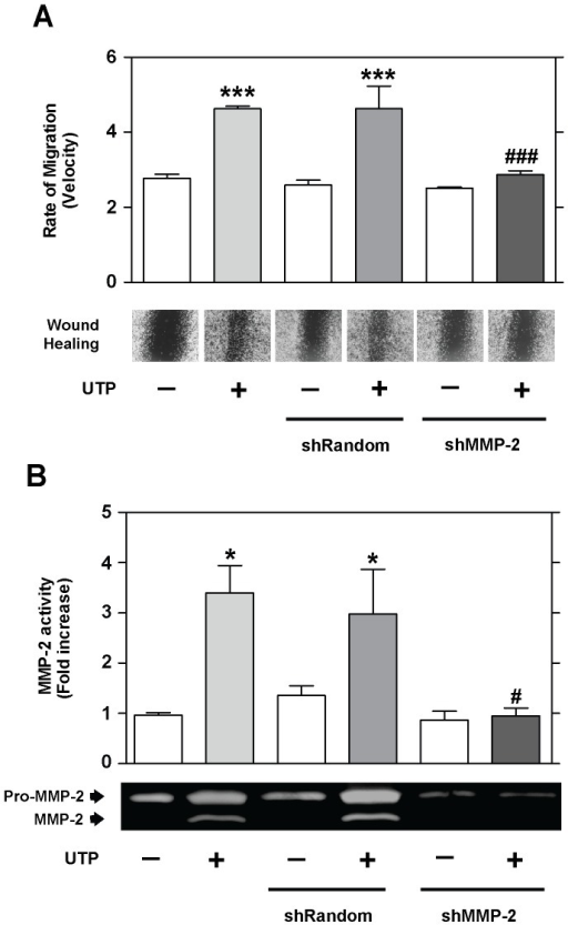 UTP regulates MMP-2 activity.Wound healing and gelatin zymograms of RT4-D6P2T cells transfected with shRNA directed against the MMP-2 gene (shMMP-2) and control cells (non-transfected cells or cells transfected with shRandom sequence). Representative images (objective magnification ×10) of wound healing and gelatin zymograms and quantitative analysis of the rate of migration (velocity) and MMP-2 activity are shown. Values were calculated as the mean ± SD using 3 independent experiments. Statistical significance: *P≤0.05 and ***P≤0.001 when compared to control cells; #P≤0.05 and ###P≤0.001 when compared to UTP-treated cells.