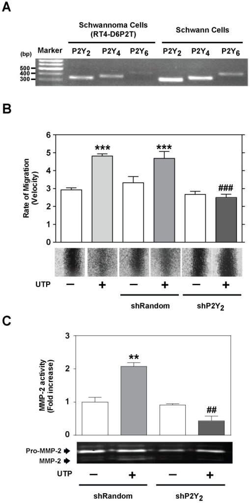 P2Y2 receptors are necessary for Schwann cell line wound repair.(A) RT-PCR amplification with specific primers against P2Y2, P2Y4, and P2Y6 receptor subtypes was performed in RT4-D6P2T cells and in primary Schwann cells after the isolation of total RNA. PCR products were separated on a 1% agarose gel and visualized with ethidium bromide. (B-C) Wound healing and gelatin zymograms of RT4-D6P2T cells transfected with shRNA directed against the P2Y2 gene (shP2Y2) and control cells (non-transfected cells or cells transfected with shRandom sequence). Representative images (objective magnification ×10) of wound healing and gelatin zymograms and quantitative analysis of the rate of migration (velocity) and MMP-2 activity are shown. Values were calculated as the mean ± SD using 3 independent experiments. Statistical significance: **P≤0.01 and ***P≤0.001 when compared to control cells; ##P≤0.01 and ###P≤0.001 when compared to UTP-treated cells.