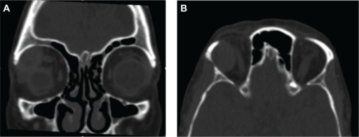 Orbital computed tomography.Notes: (A) Coronal section. (B) Transverse section. Showing a mass lesion in the right lacrimal gland, with regular borders and internal heterogeneity, determining an inferior and medial deviation of orbital structures.