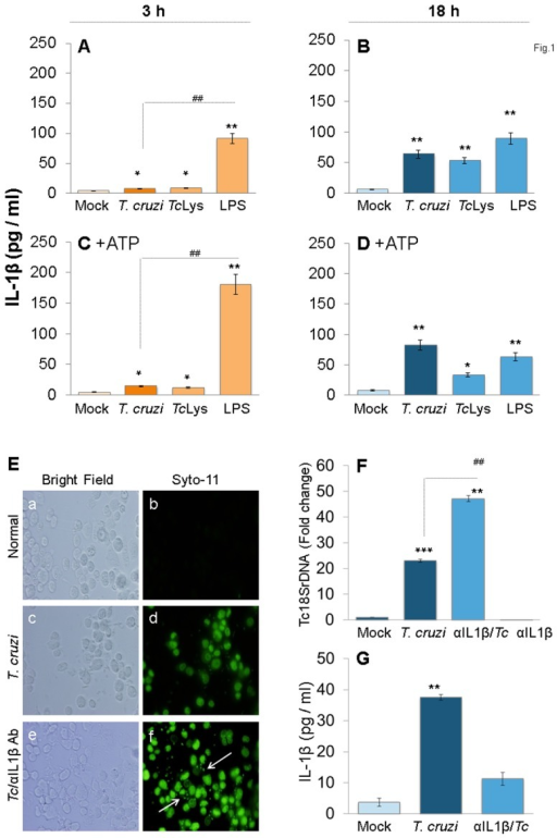 IL-1β production in macrophages infected by T. cruzi.(A–D) PMA-differentiated THP-1 mφs were incubated with T. cruzi trypomastigotes (cell: parasite ratio, 1∶3), Tc lysate (10 µg protein/106 cells) or LPS (100 ng/ml) for 3 h (A&C) and 18 h (B&D). In some experiments, ATP was added during last 30 min of incubation (C&D). IL-1β release in supernatants was determined by ELISA. (E–G) IL-1β contributes to parasite control in mφs. THP-1 mφs were incubated with SYTO®11-labeled T. cruzi in the presence or absence of anti-IL-1β antibody for 18 h. (E) SYTO®11 fluorescence as an indicator of parasite uptake (shown by arrows) was determined by using an Olympus BX-15 microscope equipped with a digital camera (magnification 40X). (F) Quantitative PCR analysis of parasite burden in infected mφs by using Tc18SrDNA-specific oligonucleotides (normalized to human GAPDH). (G) Addition of anti-IL-1β antibody depletes secreted IL-1β levels in T. cruzi-infected mφs. In all figures, data are representative of three independent experiments and presented as mean ± SD. Significance is shown by *normal versus infected and #treated/infected versus infected (*,#p<0.05, **,##p<0.01, and ***,###p<0.001).