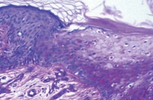 Transition area between the lesion and normal epidermis. The cytoplasm ofneoplastic cells is larger and clearer than epidermal ones. (HE staining – 200xmagnification)