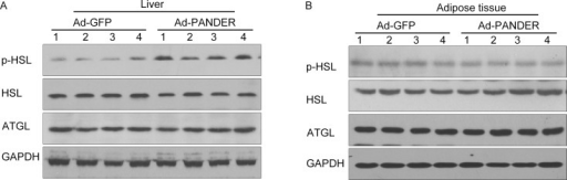 Effects of PANDER overexpression on key enzymes of triglyceride hydrolysis in liver and adipose tissue of mice.Total HSL, p-HSL, and ATGL were measured in liver (Fig. 4A) and adipose tissue (Fig. 4B) by western blot 14 days after adenovirus transfection. The results are presented of five independent samples.