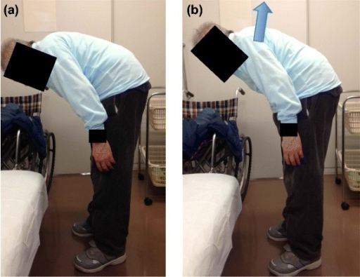 The patient showed severe kyphosis. (a) Natural standing position (b) Extension position with maximum effort. Note that the patient is not able to gaze straight forward even at maximum extension.