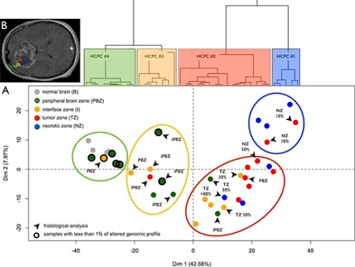 Transcriptome profilingA. Principal Component Analysis (PCA) performed on the expression data for 41000 probes without a priori selection. Dots represent samples and are colored according to the neuro-navigation sampling: green (PBZ: peripheral brain zone), yellow (I: interface zone), red (TZ: tumor zone), and blue (NZ: necrotic zone). Gray dots represent normal brain reference samples. Dendrogram of the hierarchical clustering based on principal components (HCPC) is represented above the Individual factor map. HCPC clusters are represented on the factorial plan by colored ellipses reflecting the sampling plan of the study 'from the core of the tumor to beyond the margin': HCPC #4 (blue), HCPC #3 (red), HCPC #2 (yellow), and HCPC #1 (green). Samples with unaltered array-CGH profile are circled in black. Black arrows designate samples with non-concordant histological analysis (PBZ: non-infiltrated parenchyma, iPBZ: infiltrated parenchyma, I: interface, TZ x%: presence of a corresponding percentage of tumor cells, and NZ x%: presence of a corresponding percentage of necrotic cells). B. Areas for biopsy in the four GB zones defined on preoperative MRI: necrotic zone (blue), tumor zone (red), interface (yellow), and peripheral brain zone (green).