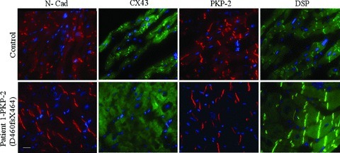 Immunoflourescence studies staining with specific antibodies for N-cadherin, connexin43, PKP-2 and DSP in right ventricle tissue samples of Patient 1 and control. All tissue samples were stained using the same primary and secondary antibodies and were incubated for the same period of time. Blue signal represents cardiomyocyte cell nuclei, visualized with DAPI staining. The white bar corresponds to 10 μm.