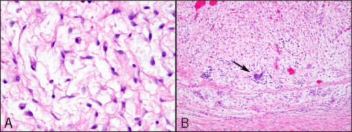 (A) The mesenchymal component composed of bland spindled to stellate cells at high magnification. (B) Foci of extramedullary hematopoiesis.