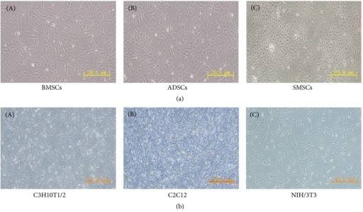 The morphology of different tissue-derived mesenchymal stem cells and cell lines. (a) The morphology of different tissue-derived mesenchymal stem cells with the appearance of a colony-forming unit. (A) indicates the bone marrow-derived mesenchymal stem cells (BMSCs), (B) indicates the adipose-derived stem cells (ADSCs), and (C) indicates the synovium-derived mesenchymal stem cells (SMSCs). (b) The morphology of different cells lines. (A) represents the C3H10T1/2 cells, (B) indicates the C2C12 cells, and (C) indicates the NIH/3T3 cells. Scale: 20 μm.