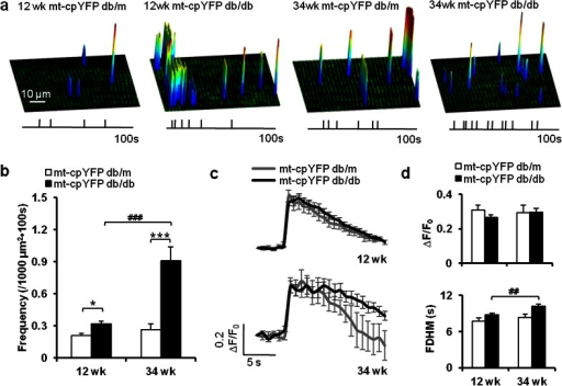 Altered frequency and unitary properties of mitoflashes in IR skeletal muscle. a Surface plots of the frequency, amplitude, location, and spatial properties of mitoflashes in representative skeletal muscles from 12- and 34-week-old mt-cpYFP db/m and mt-cpYFP db/db mice. Vertical ticks beneath the images mark the timing of these events during a 100-s acquisition window. b Mitoflash frequency increased during disease progression in mt-cpYFP db/db mice. c, d Ensemble-averaged time courses of mitoflashes (c) and quantitation of mitoflash amplitude (∆F/F0) and kinetics (full duration at half maximum, FDHM) (d). Data are expressed as mean ± SEM. *p < 0.05, ***p < 0.001 vs age-matched mt-cpYFP db/m mice; ##p < 0.01, ###p < 0.001 vs 12-week-old mt-cpYFP db/db mice; values were subject to two-way ANOVA with Tukey's post hoc analysis