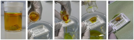 Impregnation step. The brain sample is kept in Golgi-Cox solution at room temperature in the dark (A). After 24 h, the sample is transferred into a new Golgi solution-containing bottle with the help of a histological cassette as shown in the serial pictures (B–E) and kept to settle at room temperature in dark for 7–10 days.