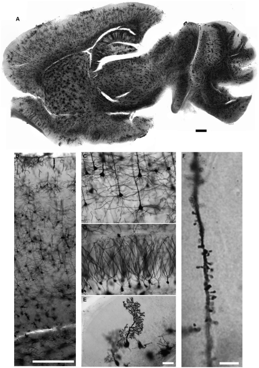 Golgi-Cox staining for adult mouse brain. Neurons in all brain regions are evenly and reliably stained with the Golgi-Cox protocol described here (A). Magnified images of cerebral cortex (B,C), hippocampus (D) and cerebellar cortex (E). Dendritic spines can also be visualized in much higher magnification (F). (Golgi staining, DIC images, scale bars 500 μm in (A,B), 50 μm in (E) and 5 μm in (F)).