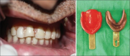 Old denture with loss of retention, stability and support along with the collapsed bite and diagnostic impressions of maxillary and mandibular arch