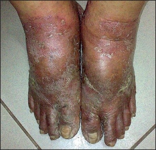 Ashy Dermatosis Natural Treatment