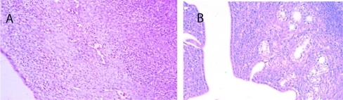 Histological analysis of endometrial tissue. A) Typical section from a sedentary control rat. B) Typical section from a sedentary diabetic rat showing excessive glands (arrows) with tubular cells surrounding the glands, along with signs of hyperplasia.