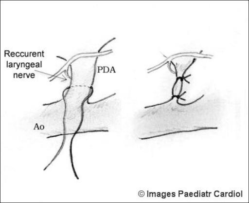 patent ductus arteriosus closure guidelines