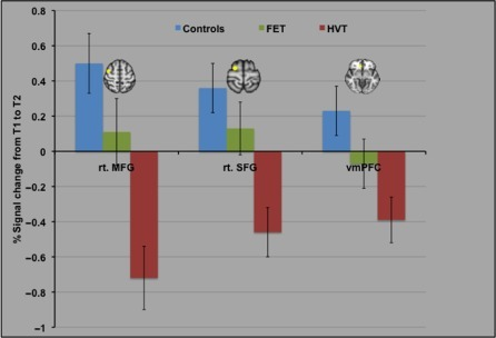 Cortical areas recruited by the FET participants relative to the HVT participants at post-training, when compared to pre-training. All axial slices are presented in radiological orientation.