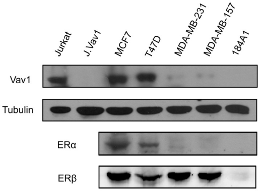 Expression of Vav1 in human breast cancer cell lines.Western Blot analysis of Vav1 and estrogen receptors expression in human breast cancer cell lines (ER positive: MCF7 and T47D; ER negative: MDA-MB-231 and MDA-MB-157) and immortalized breast epithelial line 184A1. The blot with anti-α-tubulin antibody served as a loading control (lower panel). Jurkat cells and its derived vav1- cells (J.Vav1) were used as positive and negative controls for Vav1.
