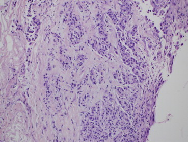 Pleural biopsy with Video assisted thoracic surgery revealing non-small cell adenocarcinoma of lung.