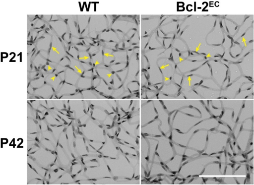 Decreased endothelial cell number in retinas from Bcl-2EC mice.Retinas from P21 and P42 Wild-type (WT) and Bcl-2EC mice were prepared by trypsin digest and HE/PAS staining. Endothelial cells (arrow) and pericytes (arrowhead) were then quantitated per x400 field of view. Scale bar = 100 μm. Experiments were repeated with eyes from >5 mice with similar results. The quantitative assessment of this data is summarized in Table 1.
