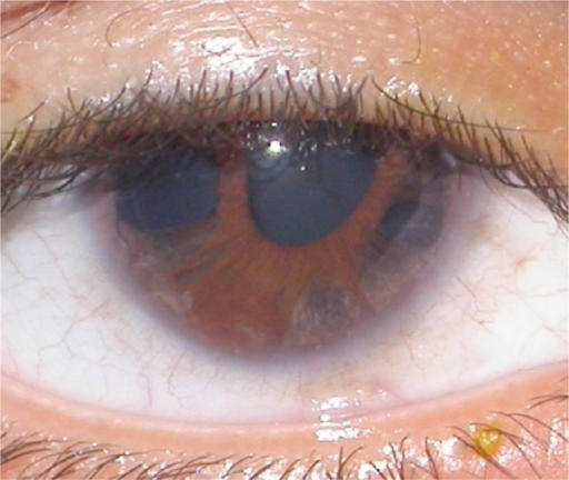 Iris holes and corectopia in OD.Abbreviation: OD, right eye.