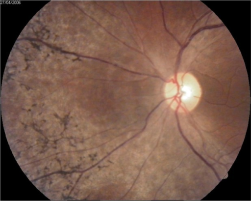 Retina and optic disc in OS.Abbreviation: OS, left eye.