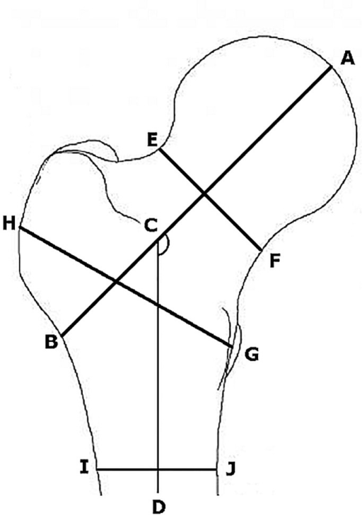 Measurement of the femur geometric parameters.Structural traits: AB is the hip axis length (HAL), ACD is the femoral neck-shaft angle (NSA), EF is the Narrow Neck, HG is the Intertrochanteric and IJ is the Femoral Shaft.