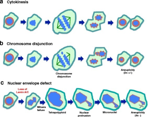 Working model: nuclear envelope defect is the main cause of aneuploidy in carcinogenesis. a Depiction of normal cytokinesis: at the start of M phase, the nuclear envelope dissolves, chromatin undergoes condensation, chromosomes pair and then separate, two new nuclear envelopes form, and cytokinesis is completed. b Chromosomal Disjunction: during chromosomal separation, one or more chromosomes are not attached. As a result, the two daughter cells have unequal distribution of chromosomes following cytokinesis. This mechanism is generally thought to be the main cause of aneuploidy. c Nuclear envelope defect causes aneuploidy: We reason that loss of a nuclear envelope structural component such as lamin A/C results in a misshapen nucleus. Additionally, the lamin A/C-deficient cells frequently fail to complete cytokinesis. Thus, tetraploid cells and subsequently aneuploid cells are generated. Formation of micronuclei at G-phases is another mechanism for the loss of individual chromosomes. Thus, we propose that the nuclear envelope defect is the main cause of aneuploidy in ovarian cancer development