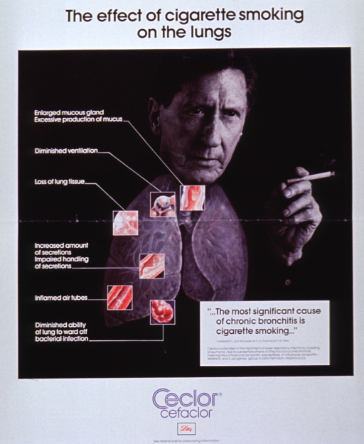 <p>White poster with multicolor lettering, primarily intended to sell an antibiotic.  Title at top of poster.  Central visual image is a reproduction of a b&amp;w photo of a man smoking a cigarette.  A color illustration of lungs is superimposed on the man.  Thumbnail illustrations of specific lung problems caused by smoking are further superimposed on the lungs.  Drug name and publisher's logo at bottom of poster.</p>